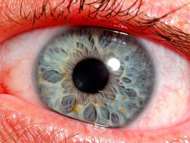 La iridología – Diagnóstico de síntomas y enfermedades